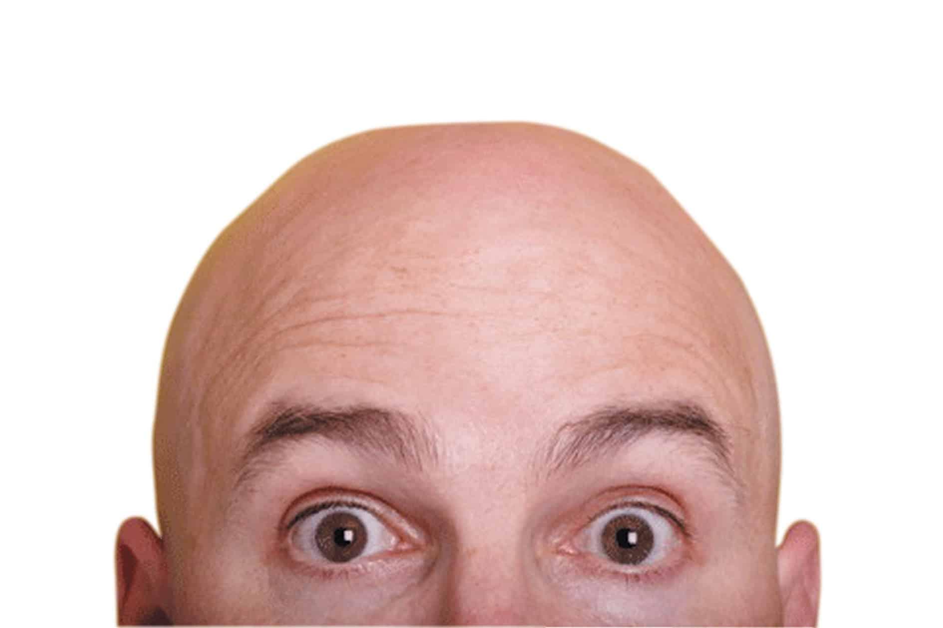 علاج صلع مقدمة الرأس عند الرجال